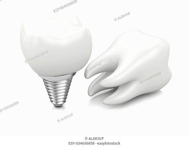 Tooth and dental implant isolated on white background. 3d rendering illustration