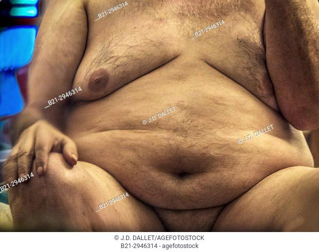 Obesity. Obesity is a medical condition in which excess body fat has accumulated to the extent that it may have a negative effect on health