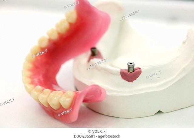 wax denture , artificial teeth