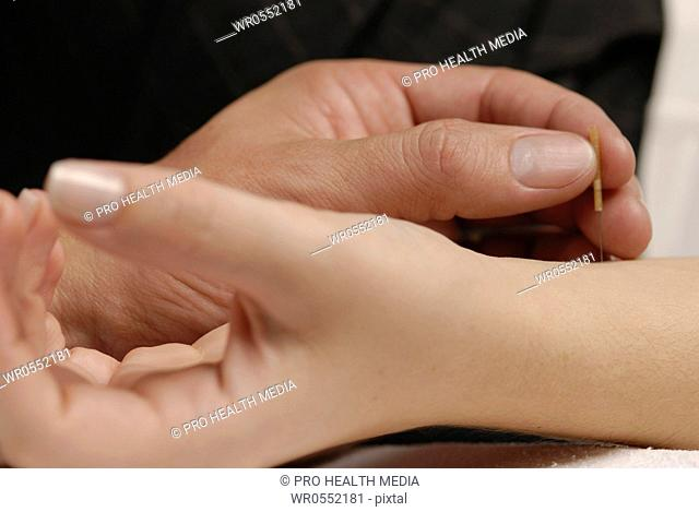 Acupuncture on the crook of the arm
