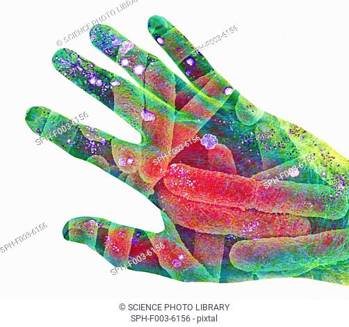 Bacterial contamination. Conceptual computer artwork of a human hand contaminated with colonies of bacteria blue/pink patches and rod-shaped E. coli