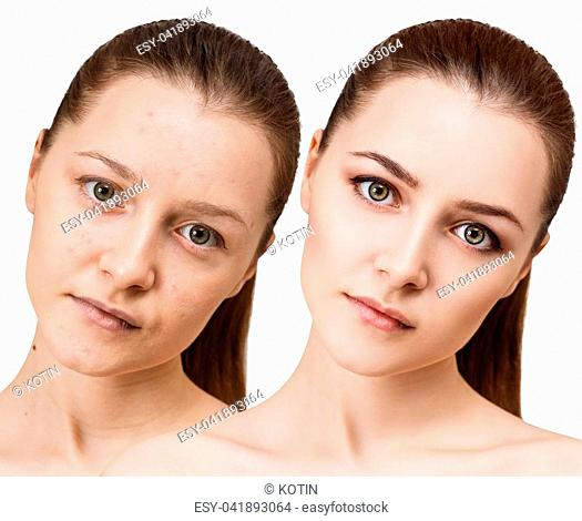 Comparison portrait of young girl with acne before and after treatment and make-up