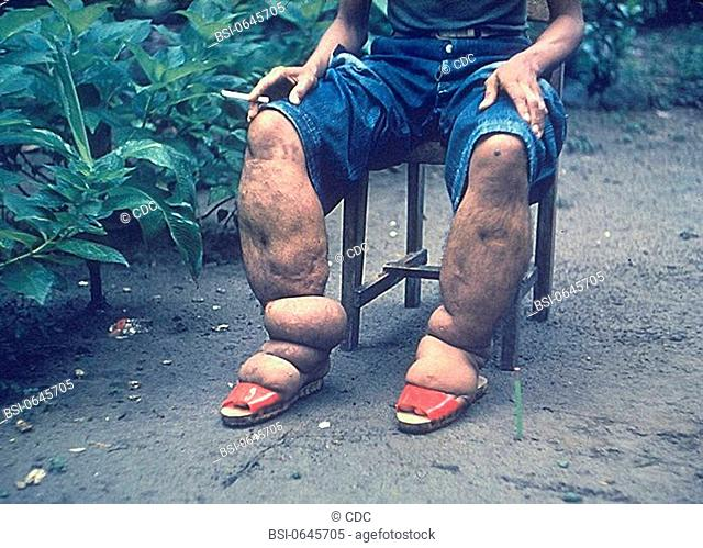 ELEPHANTIASIS<BR>Elephantiasis of leg due to filariasis. Luzon, Philippines