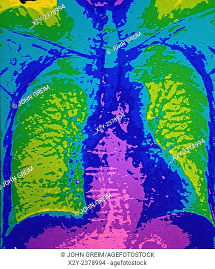 CAT scan of chest and lung