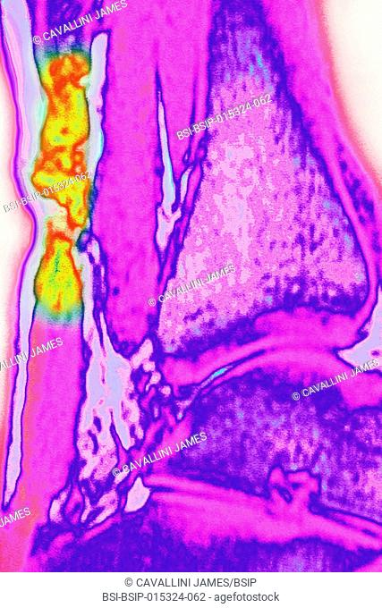 Ruptured Achilles tendon, seen on a sagittal section MRI scan of the ankle