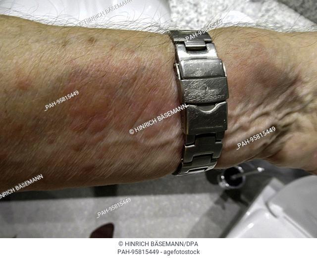 nettle rash on lower arm, october 2017 | usage worldwide. - Hamburg/Hamburg/Germany