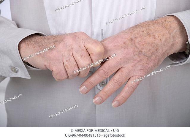Osteoarthritis hand senior