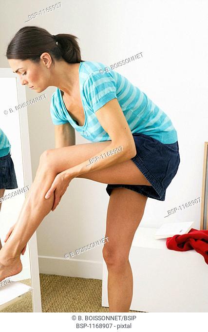 LEG PAIN IN A WOMAN Model