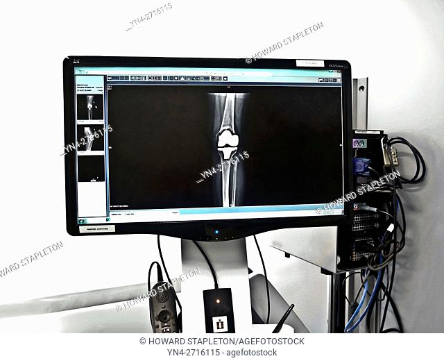 X-RAY showing knee replacement implant. Knee replacement surgery is also known as knee arthroplasty