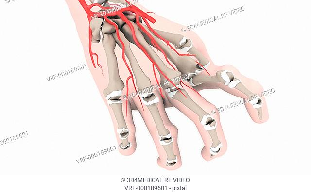 Animation depicting an arthritic hand showing the damage to the cartilage and bones. The hand rotates toward the index finger