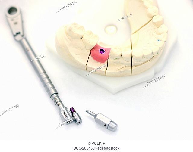 dental , tooth implant instrument , gingiva