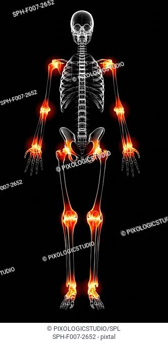 Joint pain, computer artwork