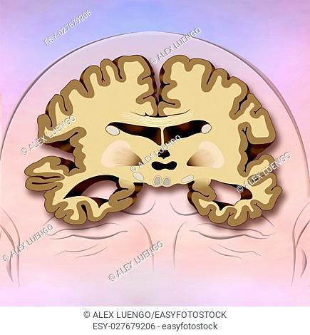 illustration on brain shrinkage in Alzheimer&39, s disease