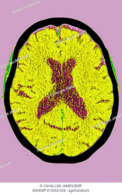 Posterior cortical atrophy (Benson£s syndrome) seen on a radial CT-scan