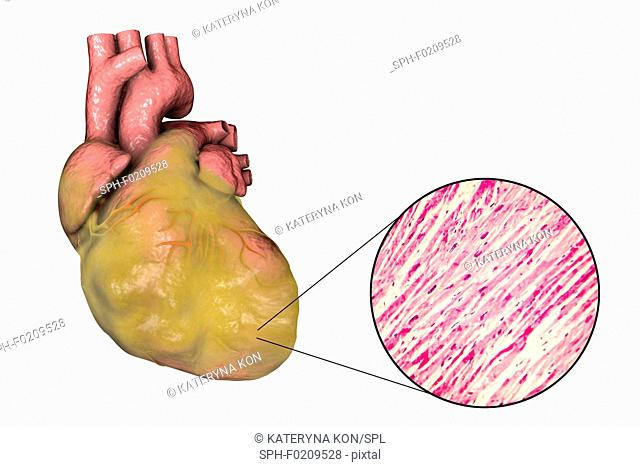 Heart with left ventricular hypertrophy, composite image