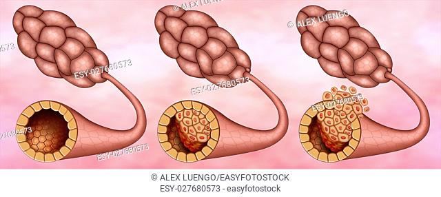 Illustration of the breast lobes where we can see one healthy and two with ductal carcinoma insitu and