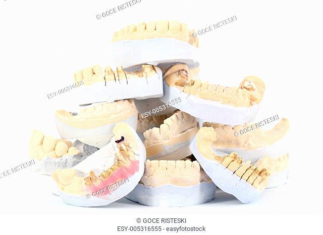 plaster model of teeth
