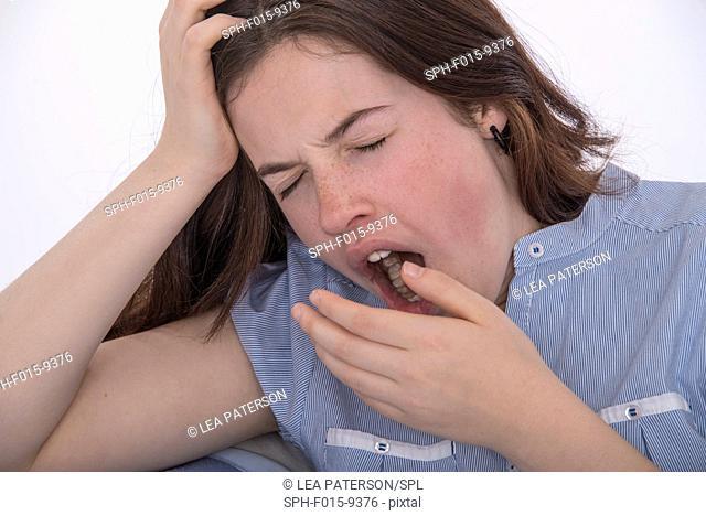MODEL RELEASED. Teenage girl yawning