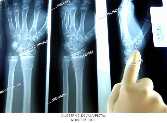 Human hand and wrist X-rays
