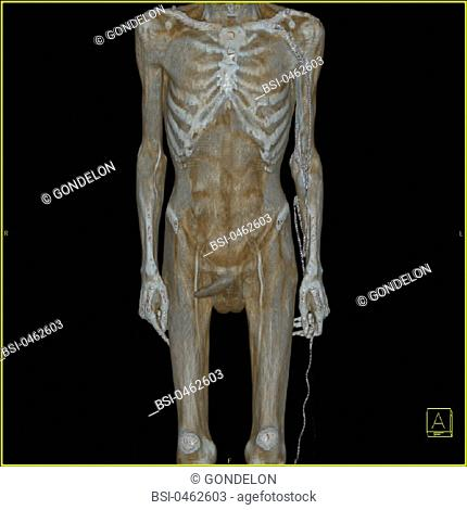 ANATOMY<BR>Frontal view of the entire body. 3D CT scan. The icon at the bottom-right indicates the image's perspective: A : anterior, P : posterior, R : right
