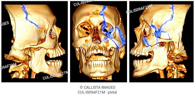 3D CT scan image of a skull fracture