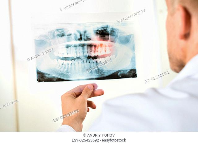 Close-up Of Male Doctor Looking At Teeth X-ray