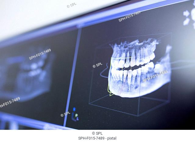 Close-up of teeth x-ray in dentist clinic
