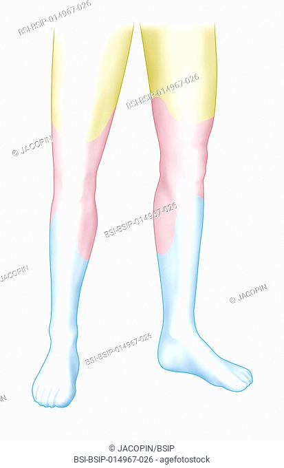 Illustration of the areas of the stenosis and occlusion of leg arteries: -yellow area: occlusion of the femoral artery -pink area: occlusion of the femoral and...