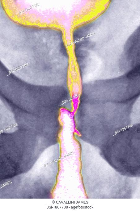 Traumatic stenosis of the masculine ureter with urethritis, visualized by urography of the pelvis in front view