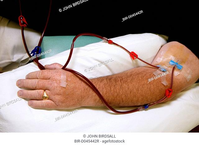 Close up of renal outpatients arm undergoing Dialysis