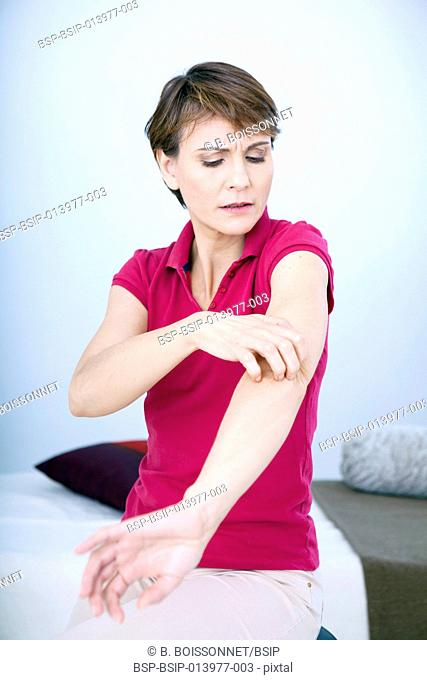 Woman scratching her elbow
