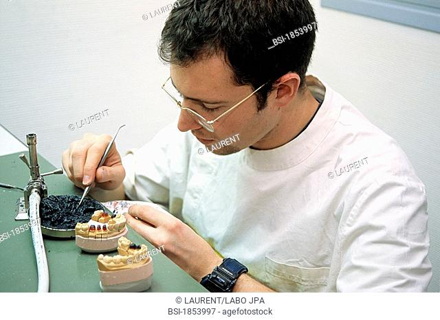 DENTURE FITTER<BR>Sculpting permanent prosthesis
