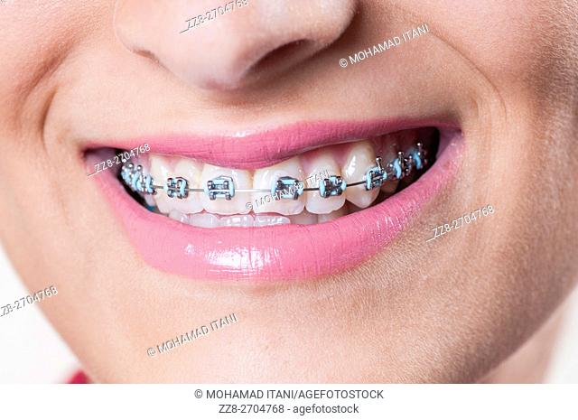Close up of a girl's mouth with braces on her teeth smiling