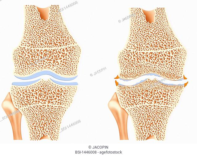 ARTHROSIS IN THE KNEE, DRAWING The arthrosis of the knee. Representation of a healthy knee on the left and an arthritic knee on the right with deterioration and...
