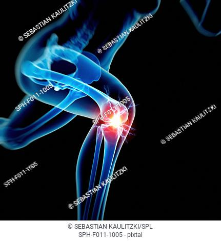 Human knee pain, computer illustration
