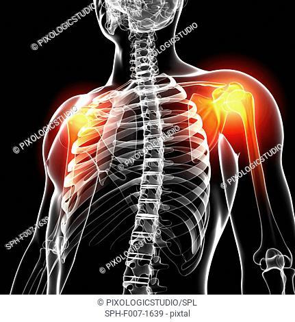 Shoulder pain, computer artwork