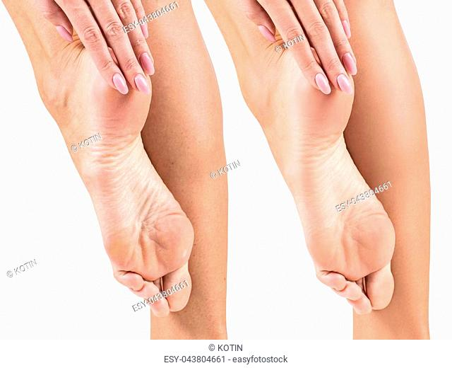 Female feet with dry skin and cracks before and after treatment and spa. Isolated on white background