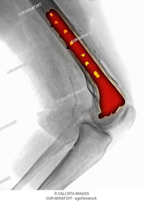 X-ray of leg showing fracture of the femur